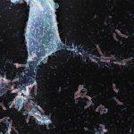 Cholesterin schützt vor Magenschleimhaut – Entzündung